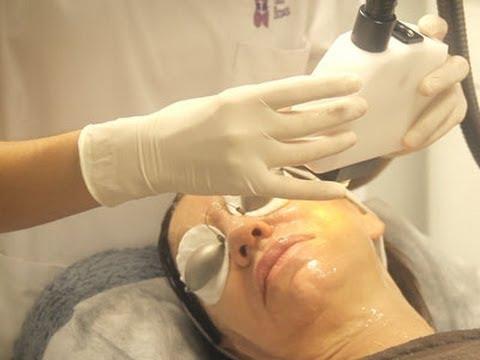 Tratamiento IPL para eliminar manchas en la piel