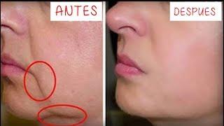 Quita las Arrugas de tu boca en 3 Días!! Remedio Casero para reducir arrugas