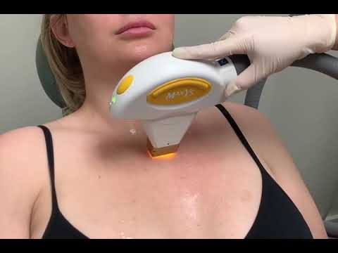 IPL Laser Treatment to Chest for Sun Spots in Weston FL