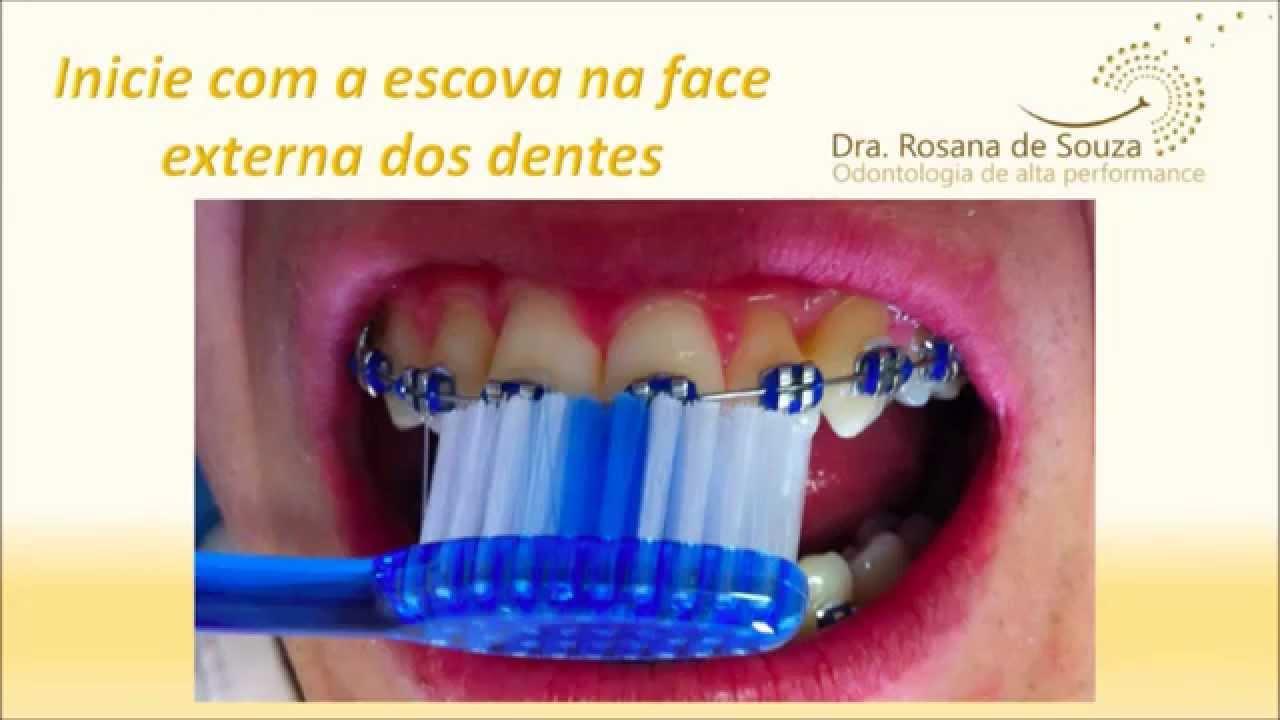 Como Escovar Os Dentes Com Aparelho Ortodontico Youtube