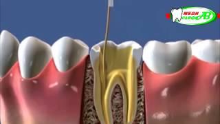 видео Пульпит. Симптомы и лечение пульпита.
