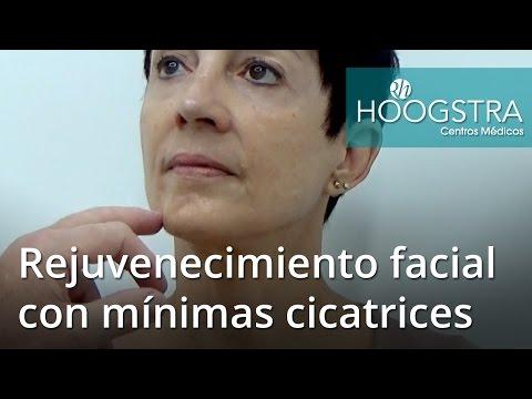 Rejuvenecimiento facial con mínimas cicatrices (16031)