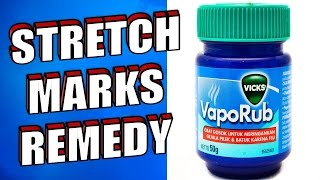 How to Remove Stretch Marks Using Vicks Vaporub