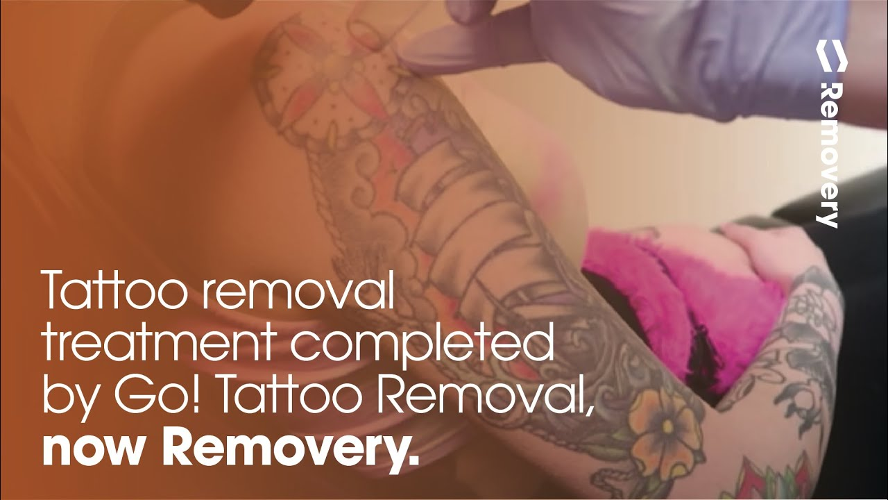 Laser Tattoo Removal On A Clipper Ship Half Sleeve - YouTube