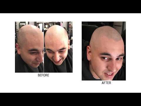 Deja Vu Hair Studio   Micro Scalp Pigmentation Los Angeles   Tamir Melamed   Hair Loss Solution