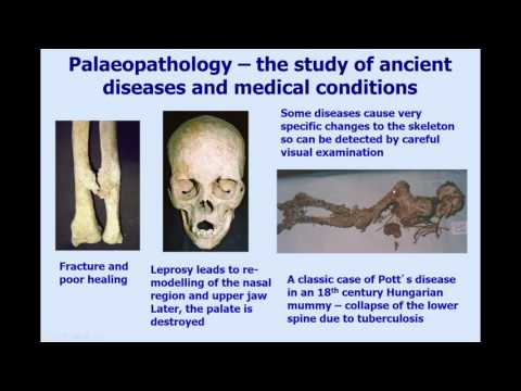 Bones, mummies, tuberculosis and ancient DNA (Helen Donoghue 17 March 2016)