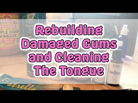 Dr Robert Cassar Oral Hygiene: Rebuilding the Gums cleaning the Tongue in HD 2014