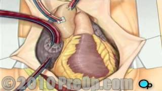 Coronary Artery Bypass Graft (CABG) Surgery PreOp® Patient Education Feature