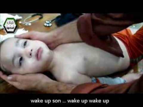 a child choking from chemical weapon attack in damascus's suburb syria (translated)