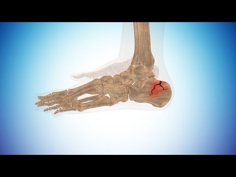 Types of Calcaneus Fracture or Broken Heel