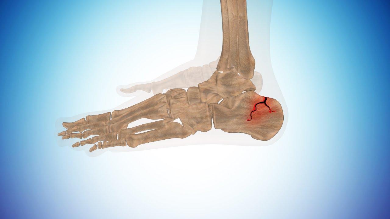 Types Of Calcaneus Fracture Or Broken Heel Youtube