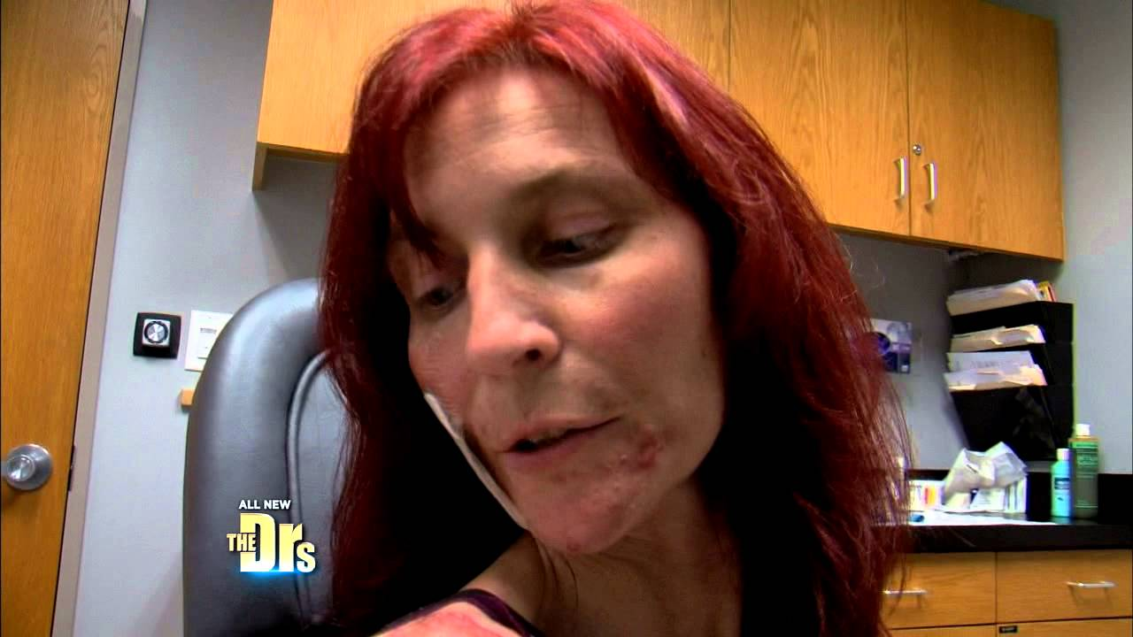 Download Woman Searches for Cause of Sores Spreading on her Face -- The Doctors (Part2)