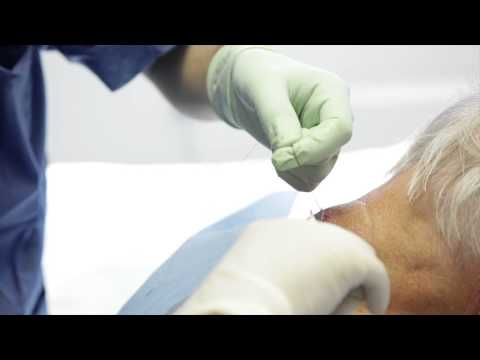 Cyst/Lipoma Removal - Laser and Skin Clinics