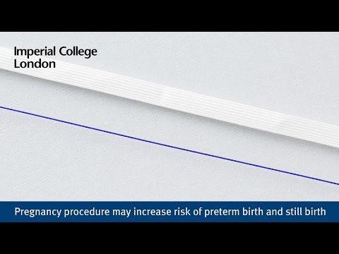 Pregnancy procedure may increase risk of preterm birth and still birth