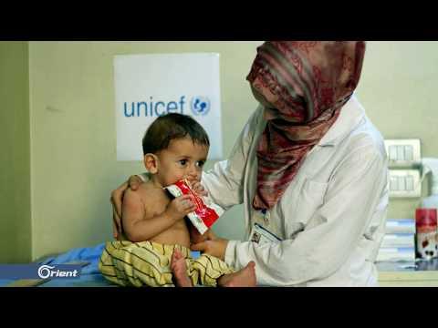 برومو برنامج العيادة.. سوء التغذية عند الأطفال  - 20:55-2019 / 10 / 10