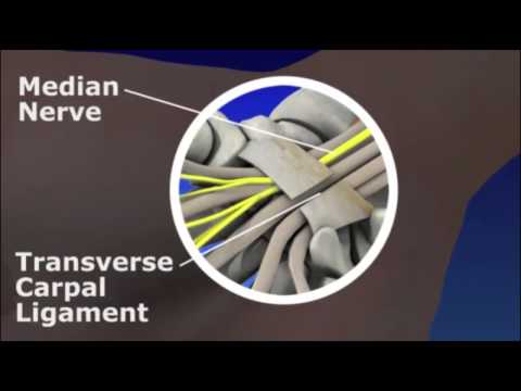 CarpalCarpaltunnel release (part 3). Division of transverseCarpalCarpaltunnel release (part 3). Divi.