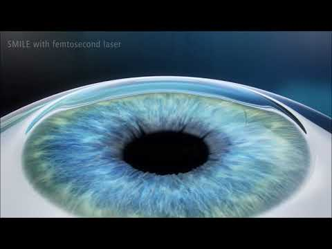 Vold Vision - SMILE with Femtosecond Laser