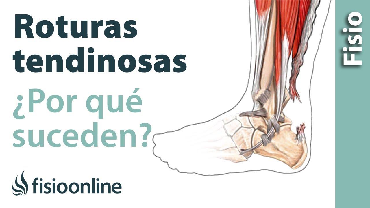 rehabilitación de las lesiones tendinosas traumáticas de la mano