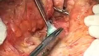 abdominoplastia convencional