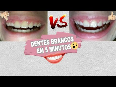 Dica Para Clarear Os Dentes Dentes Brancos Por Blog Amanda