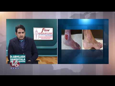 Varicose Veins Problem | Symptoms & Treatment | Dr. Abhilash | Good Health | V6 News