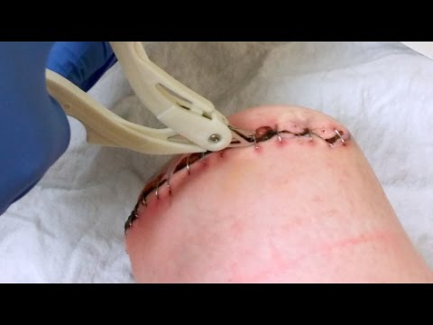 Staple Removal Post Amputation