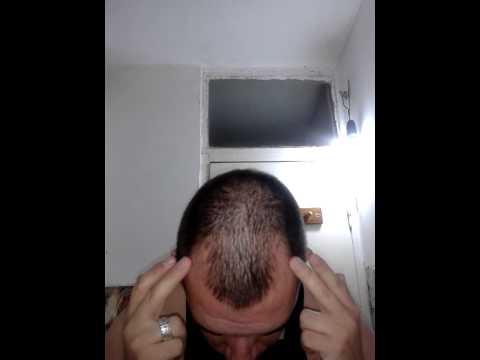 Regrow your hair with biotin...