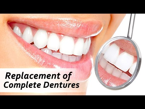 Full Replacement Denture - A New Smile