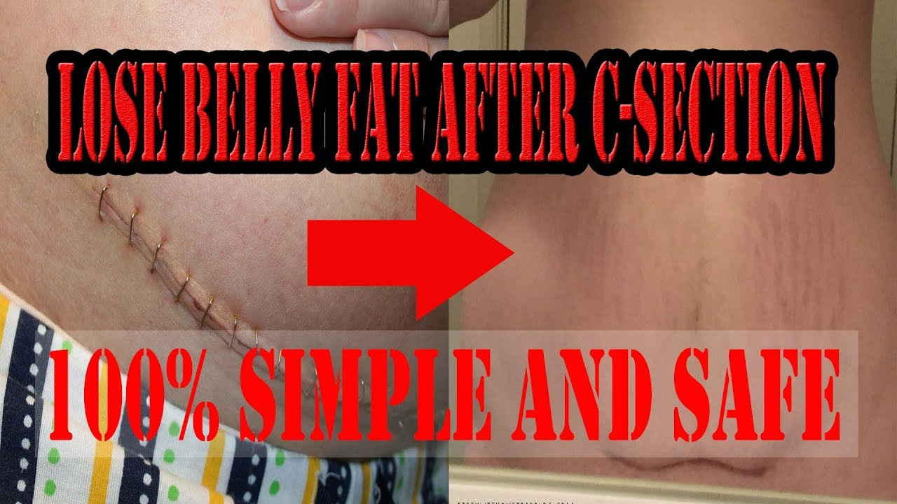 Lose Belly fat After C Section || 100% SAFE EXERCISES to ...