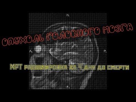 Астроцитома   ОПУХОЛЬ ГОЛОВНОГО МОЗГА на МРТ расшифровке у пациентки 76 лет за 4 дня до смерти