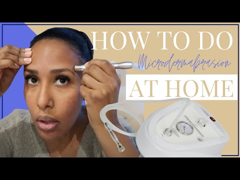 How I Do My Microdermabrasion Facial At Home | Great For Dark Skin / Hyperpigmentation