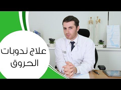 علاج ندوبات الحروق | مع الدكتور كوستي