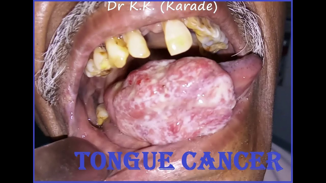 Oral cavity cancer pictures
