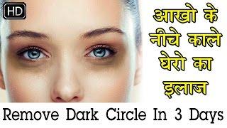 Remove Dark Circles in 7 days | Acne | काले घेरे  Under eyes | Dark Circle Treatment