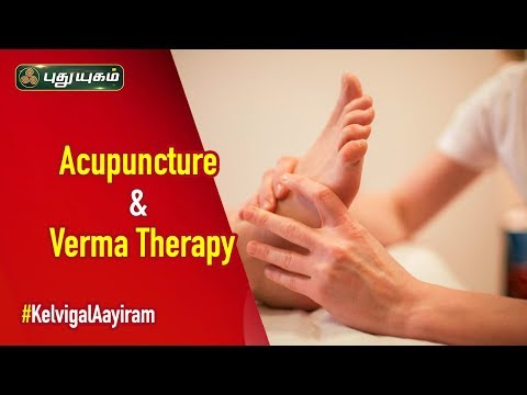 How Does Acupuncture And Varma Therapy Work? | Kelvigal Aayiram | 29/02/2020 | PuthuyugamTV