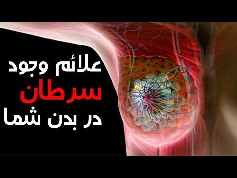 10 نشانه رشد سرطان در بدنتان - کابل پلس | Kabul Plus