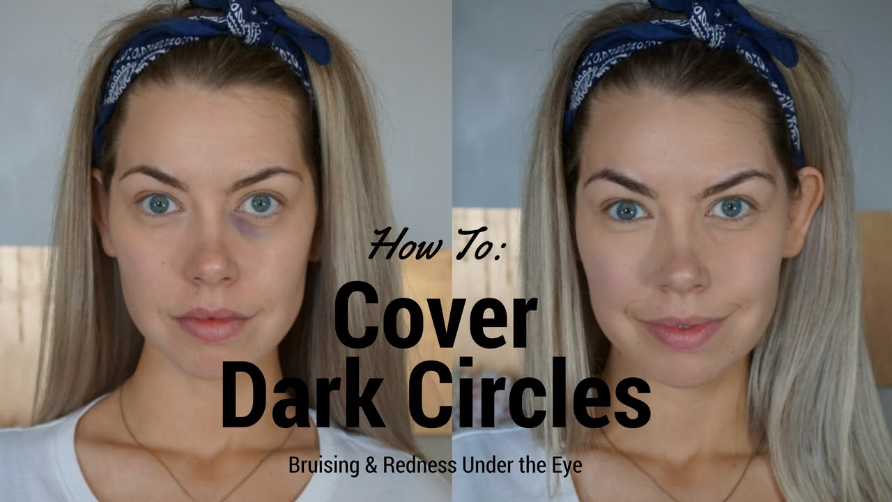 Fix Your Under Eye Bags And Wrinkles With This
