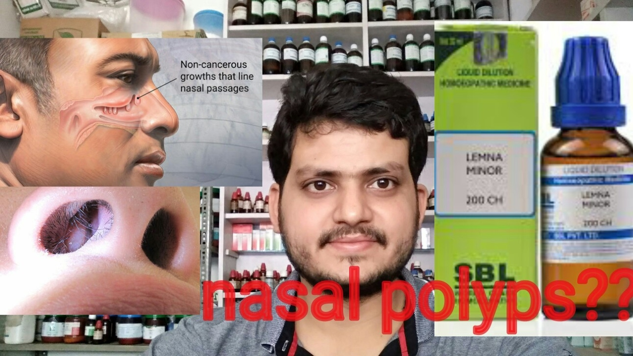 Nasal polyps!Homeopathic medicine for nasal polyps?? explain?