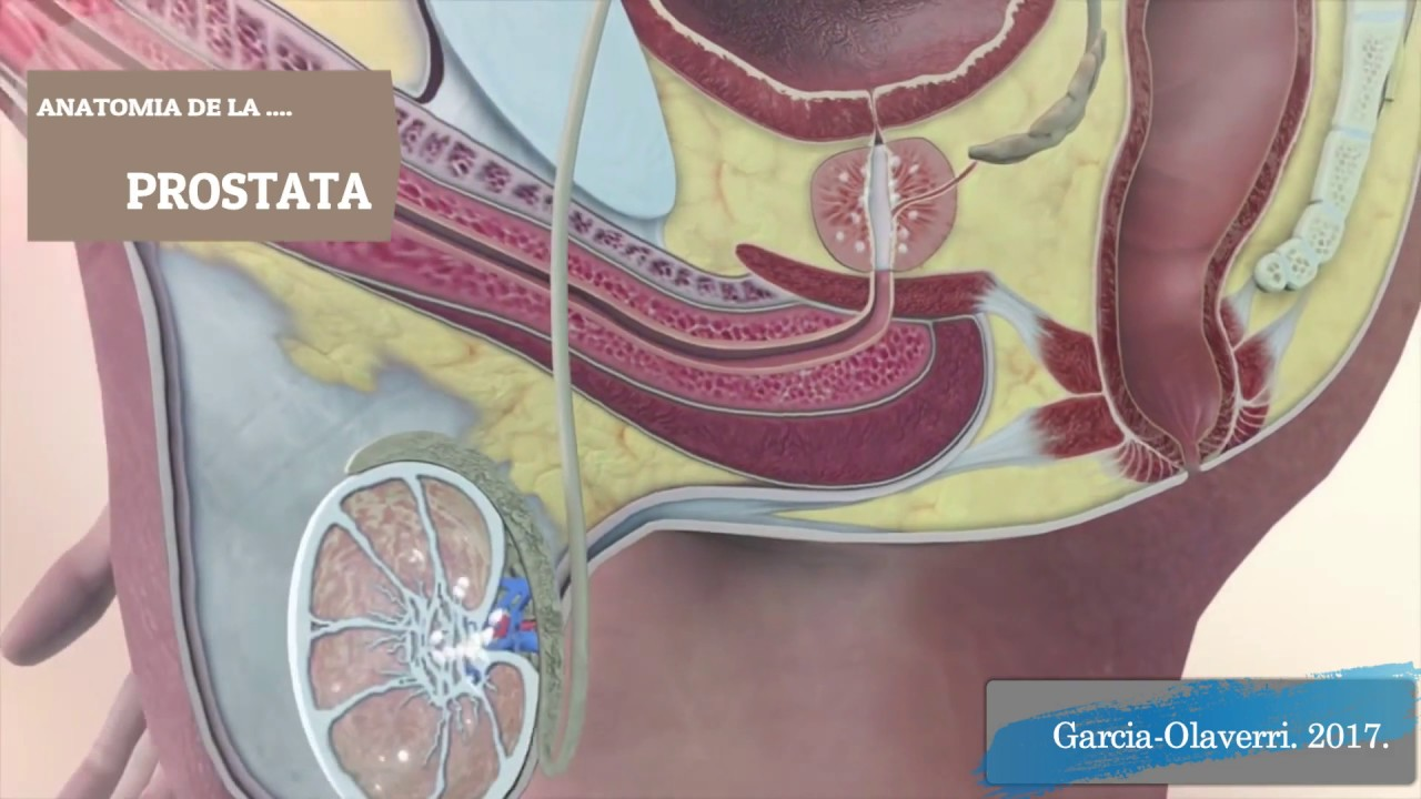 ANATOMIA DE LA PRÓSTATA-CANCER PRÓSTATA. BILBAO 2017. - YouTube