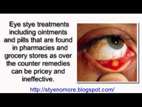 How To Cure A Stye In Your Eye Naturally