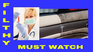Auto Detailing Disgusting Nasty Dirty Car Panels Vinyl Leather Rubber