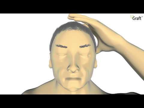 Animación de vídeo de 2014 que muestra cómo funcionan las características básicas del sistema Dr.UGraft para extraer con éxito diferentes tipos de cabello del cuerpo y la cabeza.
