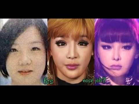 Park Bom's Plastic Surgery