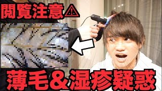 【閲覧注意】ハゲ&頭皮湿疹の自分がカメラで頭皮見た結果が恐ろし過ぎた…