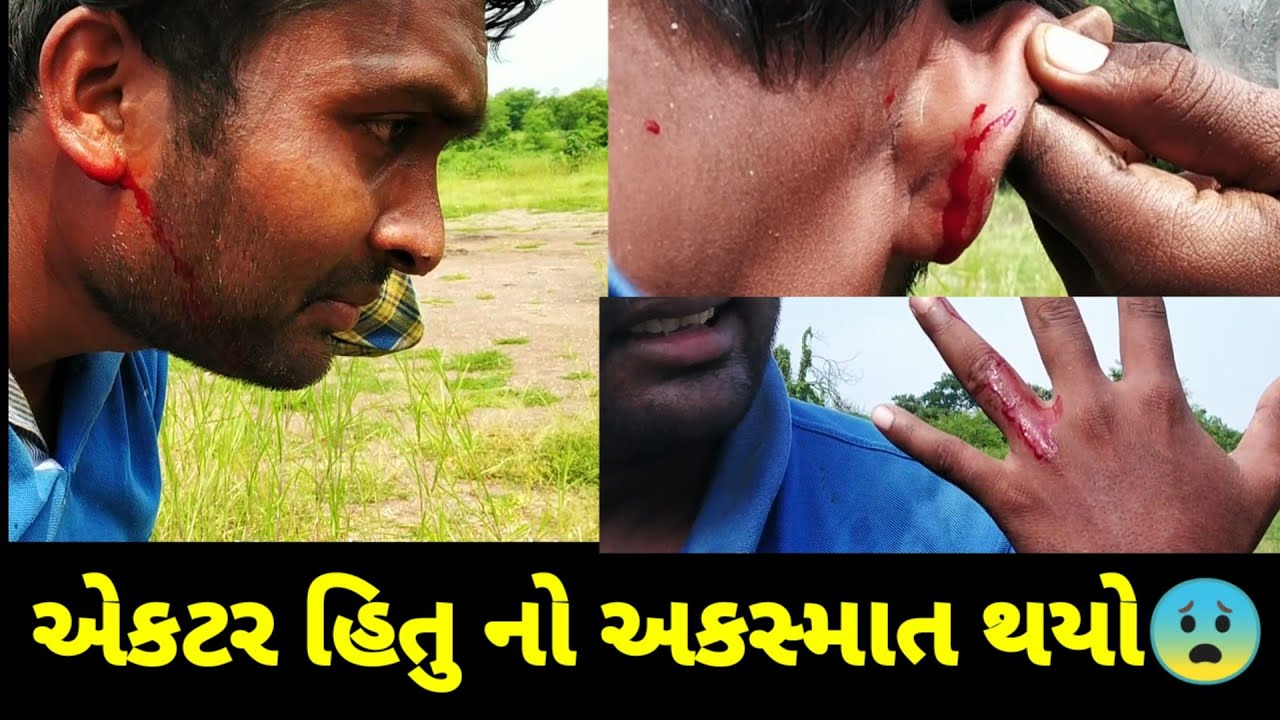 એકટર હિતુ નો અકસ્માત થયો |Actor hitu| |accident|while shoot| Injurd|while shooting|