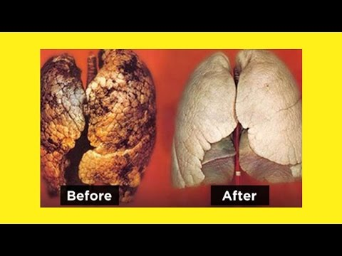 How To Purify Your Lungs In 72 Hours | Clean Lungs Naturally In 3 Days