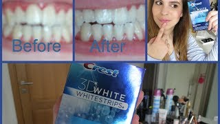 1st impression: Crest 3D White Whitestips Vivid(Here is a video telling you about my first impression of the Crest 3D Vivid whitening Kit. Hope you'll enjoy! :) Let's be friends on facebook: ..., 2014-02-28T16:08:18.000Z)