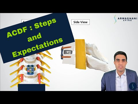 ACDF (Anterior Cervical Diskectomy and Fusion) - What is it? How do you do it? What can I do after?