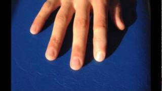 Silicone prosthetic for lost finger tips