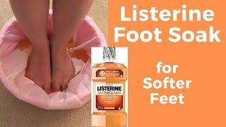 Listerine Foot Soak for Softer Feet - Massage Monday #464